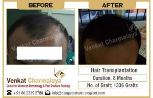 8 months after hair transplantation with 1336 grafts at The Venkat Center for Hair Transplant