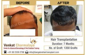 7 months after hair transplantation with 1350 grafts at The Venkat Center for Hair Transplant