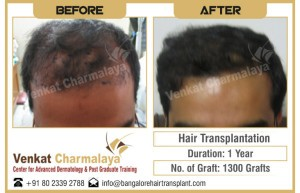 Results of Hair transplantation after 1 year with 1300 grafts at The Venkat Center for Hair Transplant