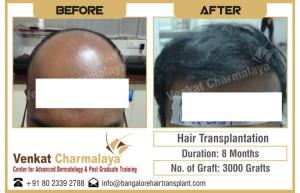 results of hair transplantation at the venkat center