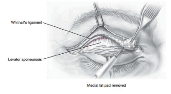 Best eyelid correction surgeon bangalore india